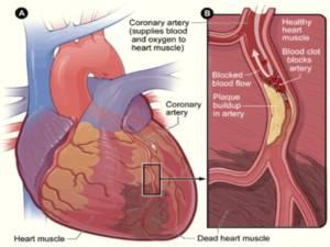 Scoperti i meccanismi grazie a cui l'Extravergine riduce il rischio di infarto