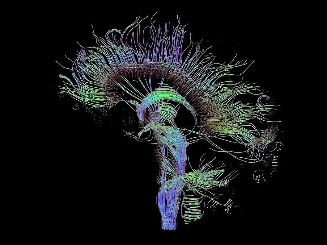 Nell'Extravergine è presente un composto in grado di ritardare il Parkinson