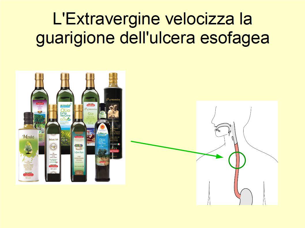 L'Extravergine velocizza la guarigione dell'ulcera esofagea